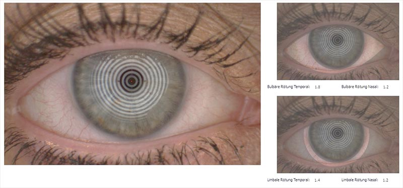 Dry eye - Scheerer Optik